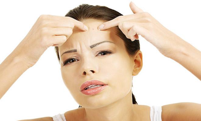 Top 5 Acne Myths and Truths